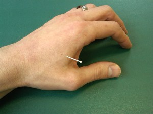 Acupuncture - Needle in an acupuncture point